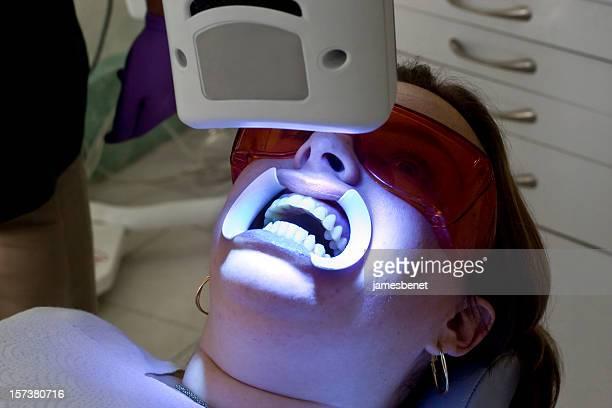 Teeth Whitening Beam Close Up