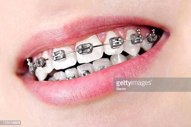 Dents avec bretelles