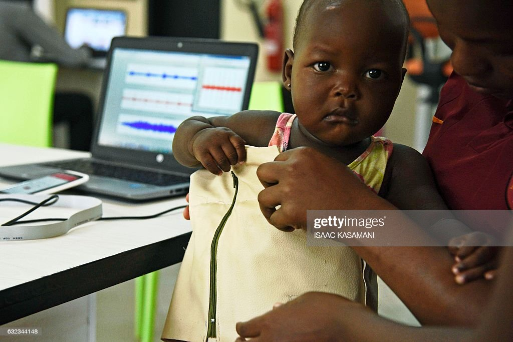 UGANDA-HEALTH-SCIENCE-INNOVATION-PNEUMONIA : Nachrichtenfoto