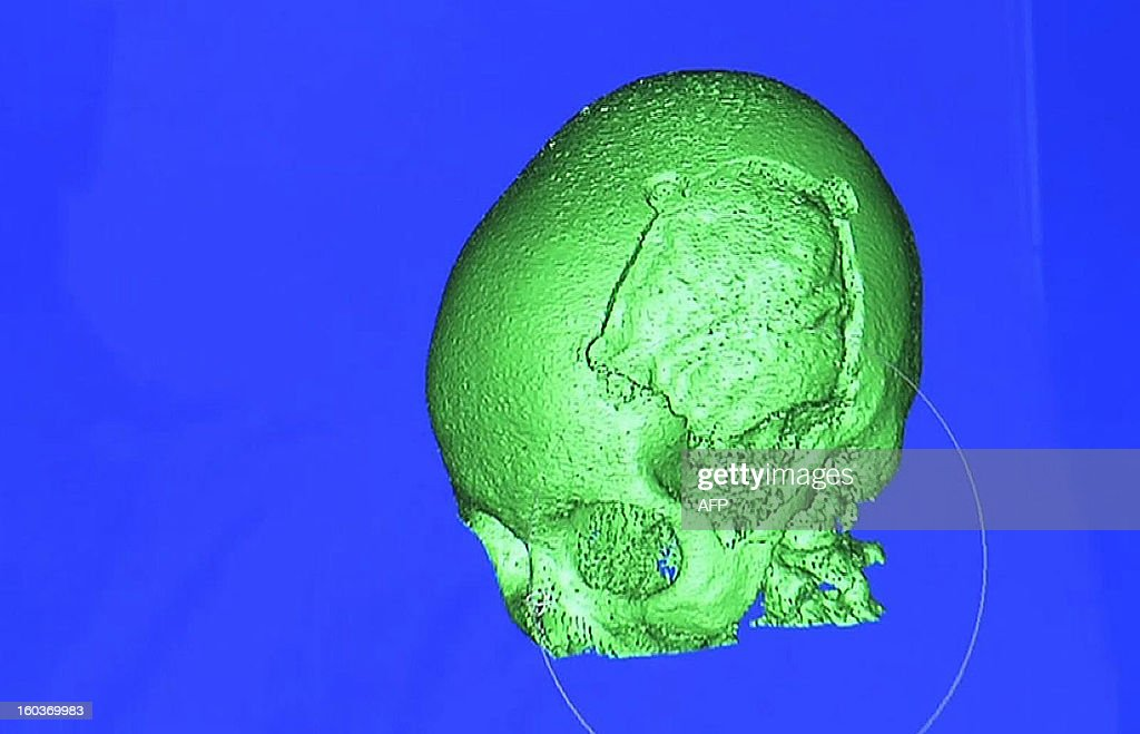 A television grab image made in London, on January 30, 2013, shows a computer generated 3D image of the damaged skull of Pakistani schoolgirl Malala Yousafzai. Malala, was shot by the Taliban in 2012, is completely deaf in her left ear after she was shot at point blank range in the October attack. Surgeons will also insert an electronic device into the ear that should help her hearing return to near-normal levels within 18 months. RESTRICTED TO EDITORIAL USE - MANDATORY CREDIT ' AFP PHOTO / UNIVERSITY HOSPITALS BIRMINGHAM ' - NO