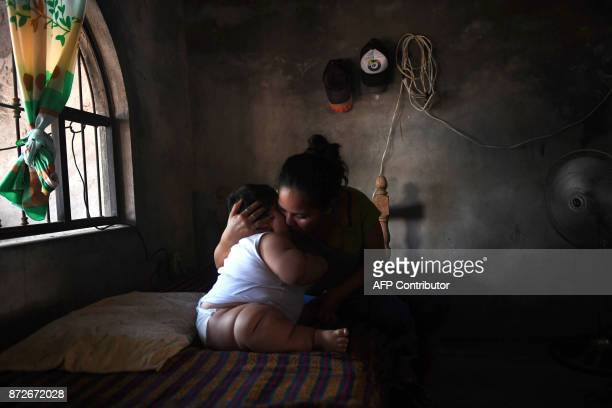 Tenmonthold Luis Gonzales is cuddled by his mother Isabel Pantoja at their home in Tecoman Colima state Mexico on November 8 2017 Luis Manuel...