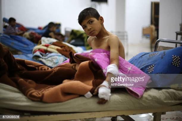 Tenyearold Abd alRahman who lost both his legs when a Syrian regime mortar shell hit a school earlier in the week in Jisreen receives treatment at a...