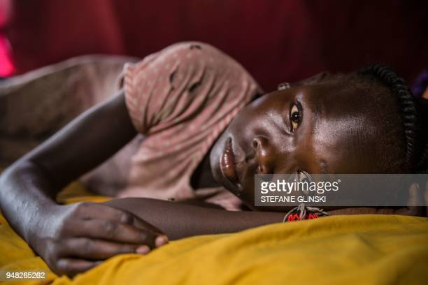 Ten-year-old Angelina Anyanya who has epilepsy lays on a bed at Mahad camp for internally displaced people in Juba on April 17, 2018. - The camp...