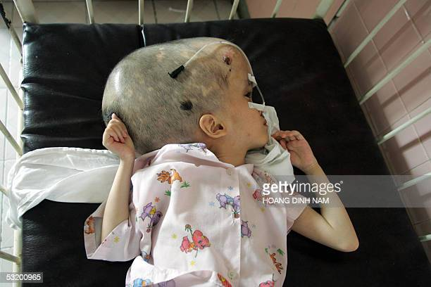 Tenyearold girl Pham Thi Phuong Khanh with deformed heads lies in a crib at the Peace Village in Tu Du hospital Ho Chi Minh City 13 June 2005 She has...