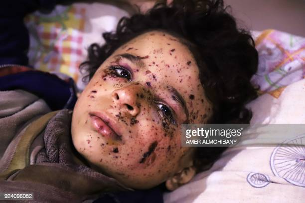 Ten-year-old Omar who was injured in an air strike, that killed several members of his family, on their home in Otaybah receives treatment at a...