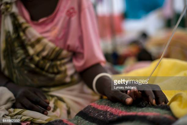 Teresa Odok holds the hand of her son Obach Agustino 2 years old while he is being treated for severe malnutrition and additional complications at a...
