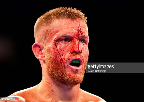 Terry Flanagan looks on as he takes on Maurice Hooker during there vacant WBO superlightweight world title at Manchester Arena on June 9 2018 in...