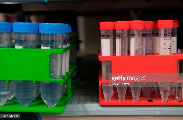 Test tubes are seen in the lab of Dr Christian Hinrichs an investigator at the National Cancer Institute in immunotherapy for HPV cancers at the...