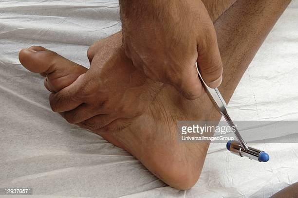 GP testing young male patients myotactic ankle reflex with tendon hammer to elict response from his calcaneal tendon Tapping belly of tendon...
