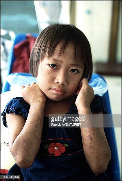 Thai Scientist Krisana Kraisintu Develops A Revolutionary AntiAids Treatment Called GpoVir On January 8Th 2002 In Surin Thailand A Child AIDS Patient...