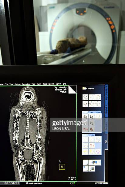 The 2500 yearold mummified body an Egyptian female known as 'Tahemaa' is scanned at the Saad Centre of Radiography at City Univeristy in central...