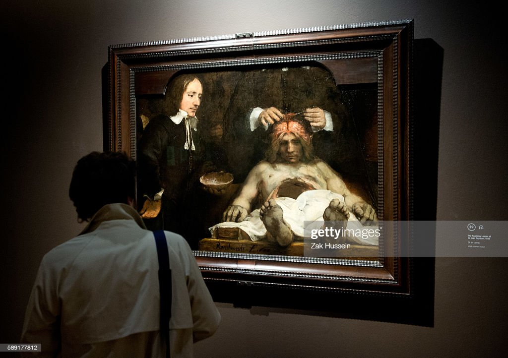 The Anatomy Lesson Of Dr Joan Deyman On Display At The Press View