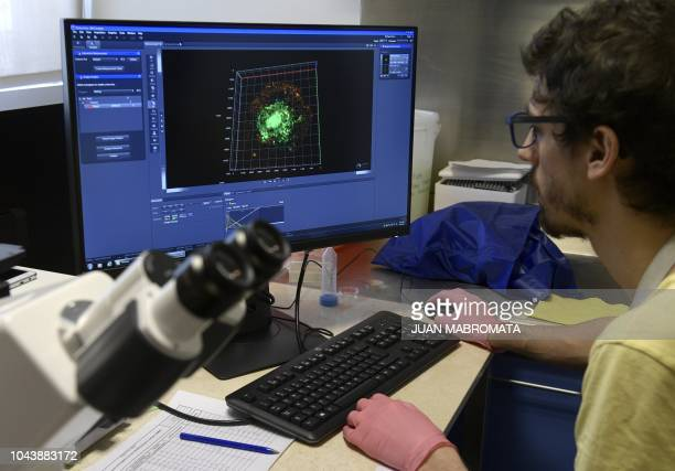 The Argentinian Dr Pehuen Pereyra Gerber observes HIV1infected macrophages being attack by peptidespecific autologous CD8 T cells in a lab of the...