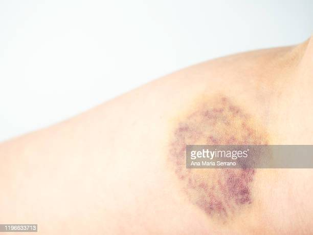 the arm of a person with a bruise after a blood test - equimose imagens e fotografias de stock