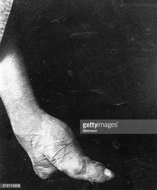 The atrocious pain of Chinese foot binding usually starts around age four for women and requires wrapping bandages tightly around the foot The...