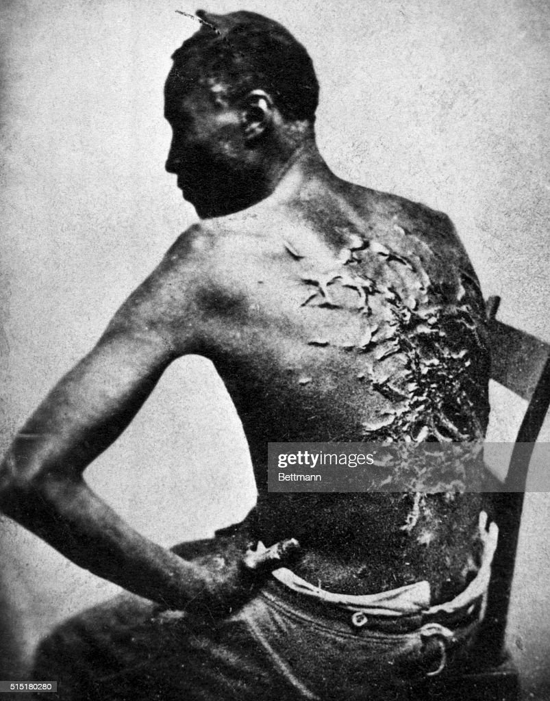 A Slave with Scars on his Back : News Photo