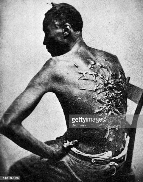The back of a Louisiana cotton plantation slave who had been whipped by his owner Captain John Lyon