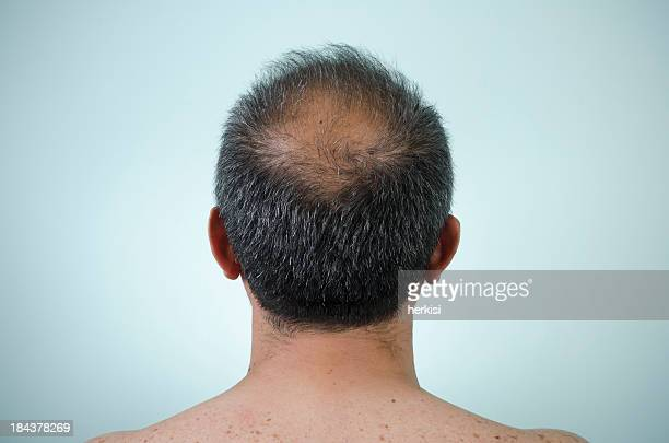 The back view of a man's head who is balding