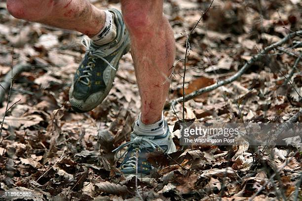 The Barkley Marathon Here the legs of Jim Nelson are cut and bleeding from the thorns of the sawbreyer bushes throughout the course Photographed...