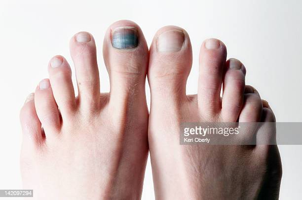 the big toe takes a toll after a season of skiing in lake tahoe, nevada. - toe stock pictures, royalty-free photos & images