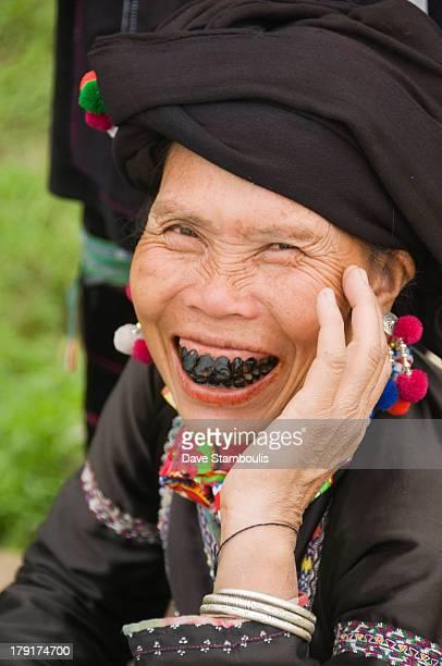 The black teeth of a Black Lu hilltribe woman in Tam Duong Vietnam