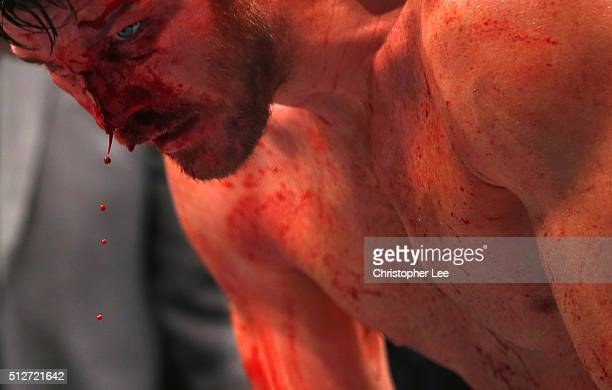 The blood pours from Michael Bisping of Great Britain's face as he beats Anderson Silva of Brazil during the Middleweight Bout of the UFC Fight Night...