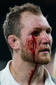 london england bloodied eye nick koster