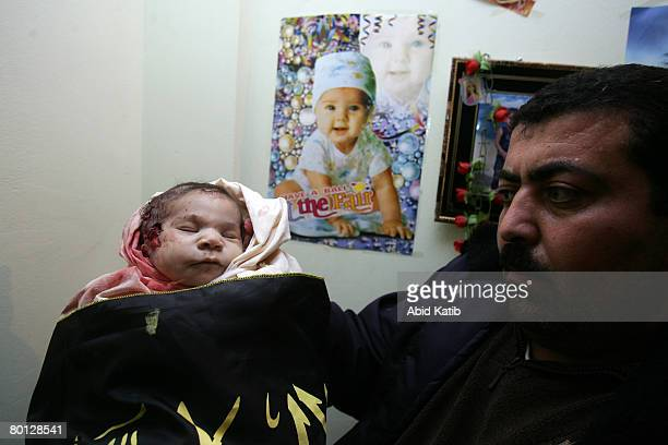The body of 18 daysold newborn Palestinian baby girl Amira Abu Asr is carried during her funeral March 5 in Gaza city Gaza Strip The Baby Abu Asr was...