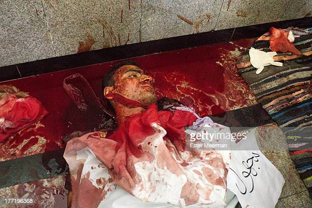 CONTENT] The body of a dead man lies at the field hospital in the Rabaa Al Adaweyya mosque in the upscale suburb in Nasr City in Cairo The sign next...