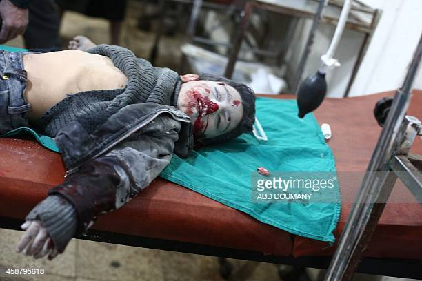 The body of a Syrian boy lies at a makeshift clinic after a mortar reportedly fired by Syrian government forces fell in the besieged rebel town of...