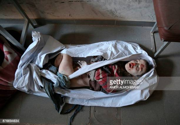 The body of a Syrian child is seen at a makeshift hospital in the Eastern Ghouta town of Kafr Batna on the outskirts of Damascus following reported...