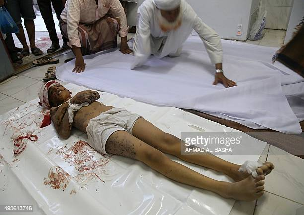 The body of a Yemeni boy lies at a morgue after he was fatally wounded by a rocket fired during clashes between fighters from the Popular Resistance...