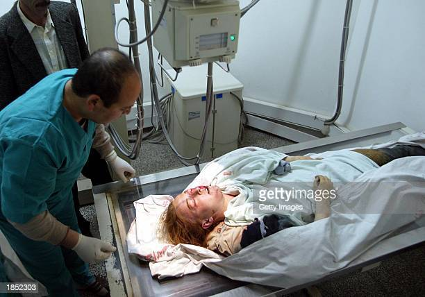 The body of American peace activist Rachel Corrie lies in AlNajjar hospital after she was killed by an Israeli bulldozer March 16 2003 in the Rafah...