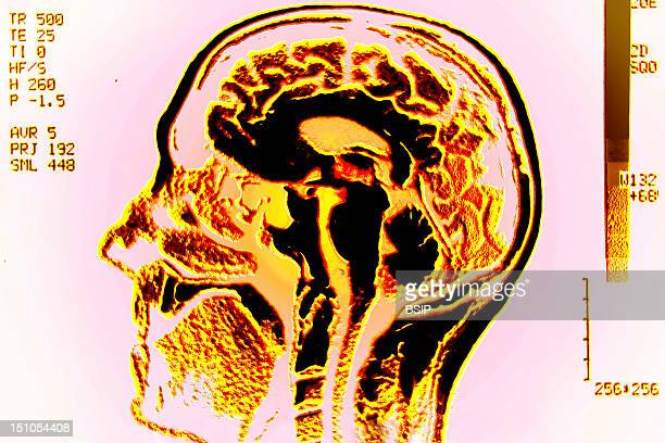 The Brain Is The Essential Organ In The Central Nervous System Brain Death Defines Death In A Human The Nerve Mass Contained In Man's Skull Includes...
