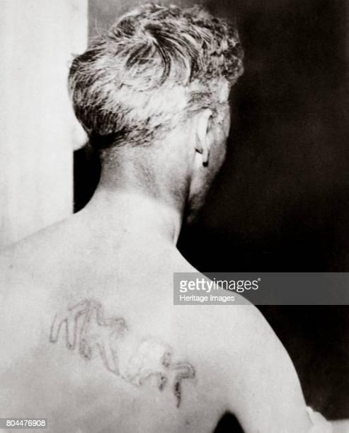 The branded back of Reverend Orrin Van Loon, Detroit, Michigan, USA, July 1924. Reverend Orrin Van Loon, pastor of Berkley Community Church,...
