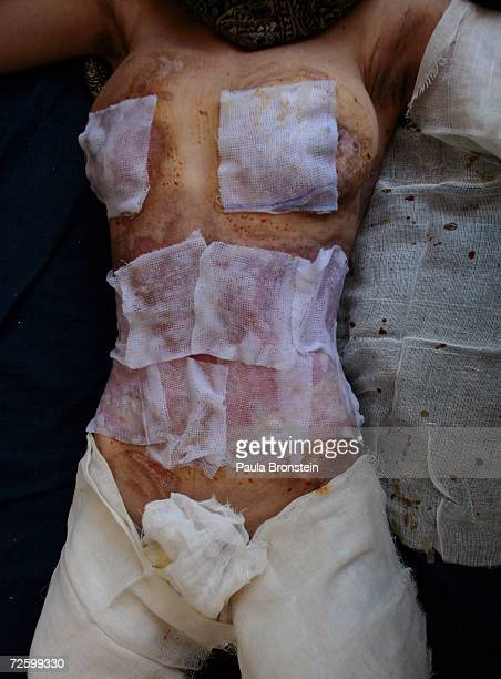 The burned body of Simagul a self immolation victim lays on a bed at the Herat hospital November 16 2006 in Herat Afghanistan Simagul complained that...