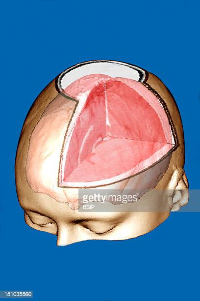 The Cerebral Hemispheres Pink Constitute A Bulky Mass Of Nerve Tissue Opacified Vessels Are In White No Pathology 3D Reconstruction Of Surface...
