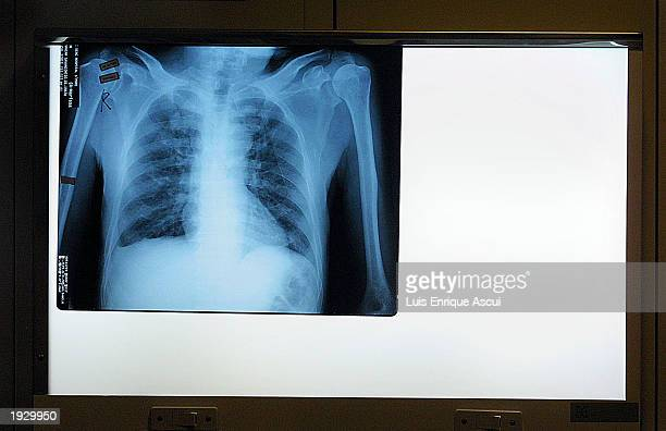 The chest Xray of a suspected SARS victim sits on a lightbox April 14 2003 at Tan Tock Seng hospital in Singapore The hospital has become the...