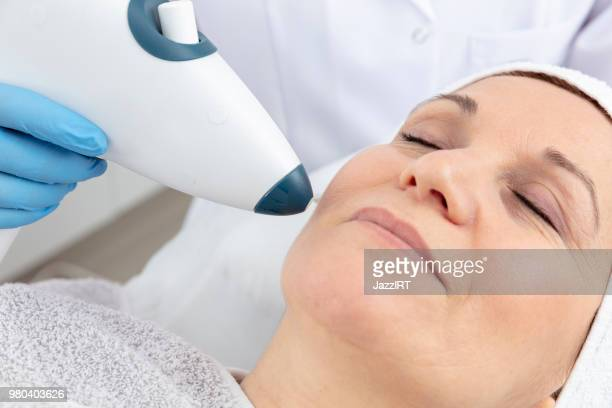 the cosmetologist is caring for the patient's face - plastic surgery stock pictures, royalty-free photos & images
