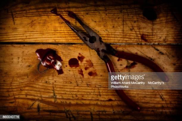 the dentist - dentist horror stockfoto's en -beelden