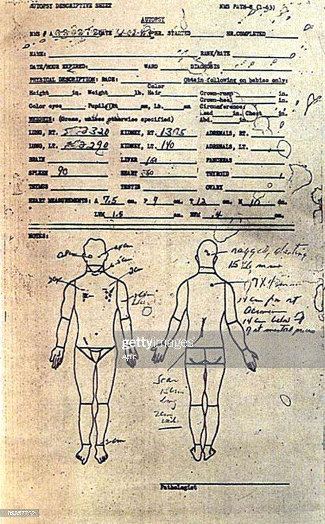 John F. Kennedy Autopsy : Foto di attualità