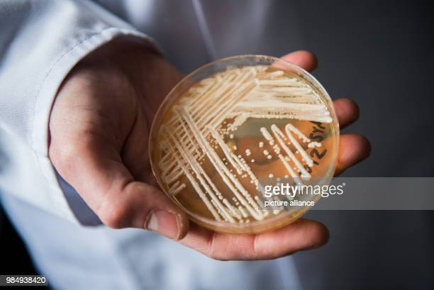 The director of the National Reference Centre for Invasive Fungus Infections, Oliver Kurzai, holding in his hands a petri dish holding the yeast...