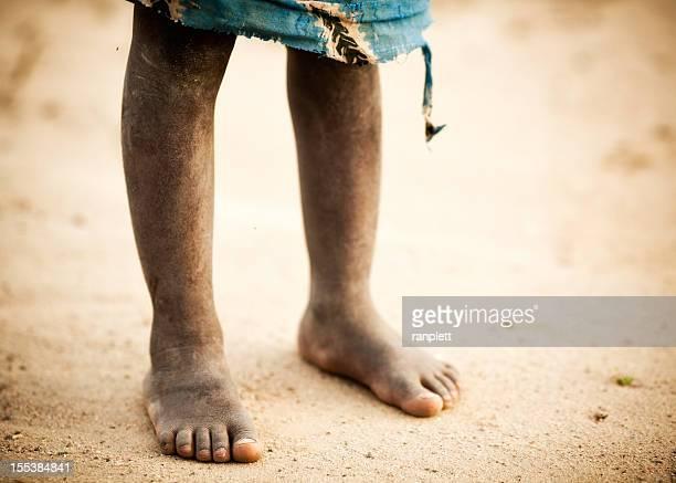 Die Dusty Füße eines afrikanischen Jungen