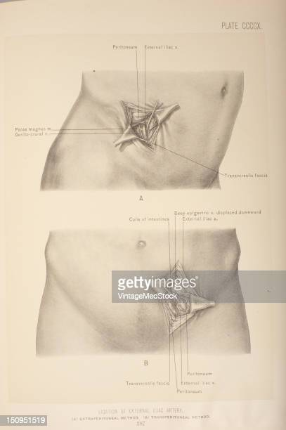 The external iliac artery is a dirct continuation of the common iliac artery 1903 From 'Surgical Anatomy The Treatise of the Human Anatomy and Its...