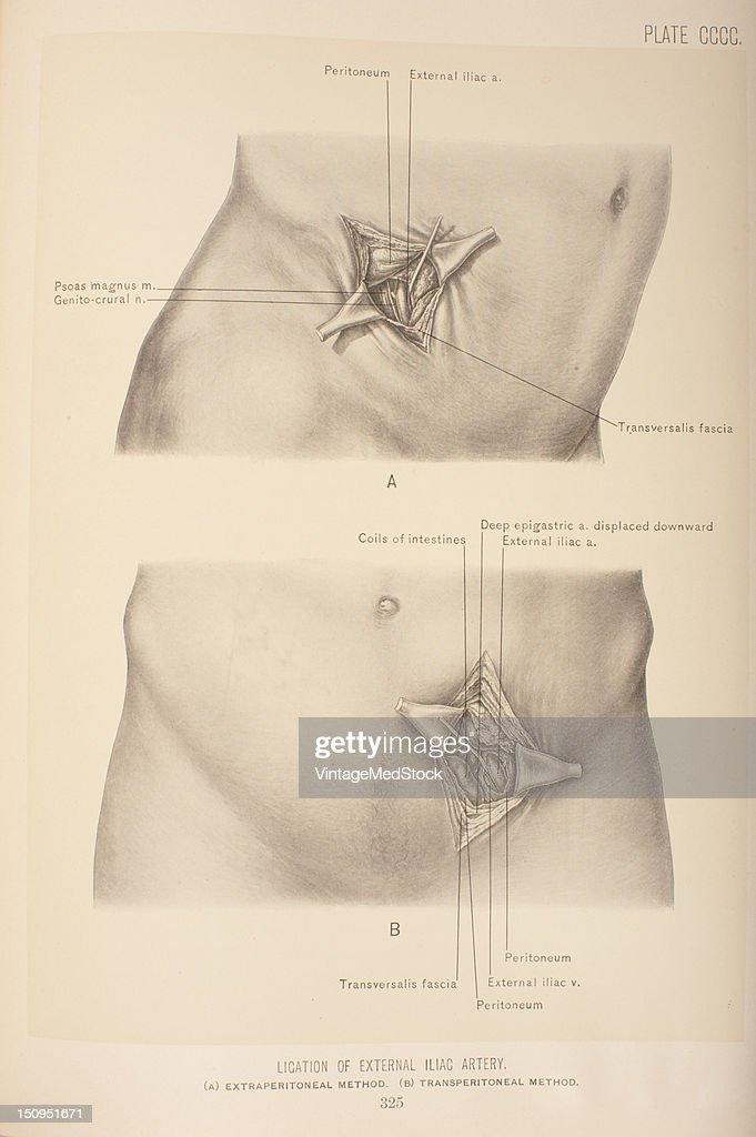 Ligation Of External Iliac Artery Pictures | Getty Images
