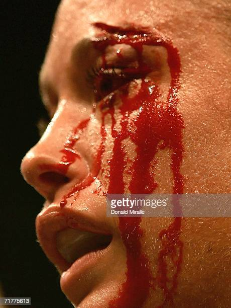 The eye of Jessica Rakoczy is cut open by a head butt by Belinda Laracuente during their fight at Staples Center on September 2 2006 in Los Angeles...