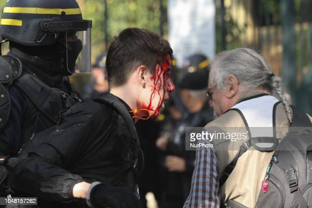 The face of a demonstrator is injured during a rally called by several French workers unions on October 9 2018 in Paris as part of a nationwide day...