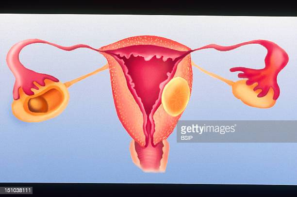 The Female Genital System Is Prone To Three Main Types Of Disorders Cysts An Ovarian Cyst Here On The Left Salpingitis Infection Of The Uterine Tube...