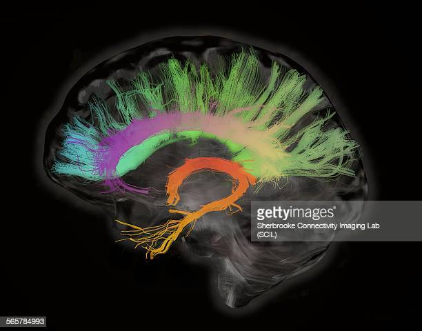 the fiber tracts involved in aging. the splenium and genu of the corpus callosum, the fornix and the cingulum bundle. human subject - fornix stock photos and pictures