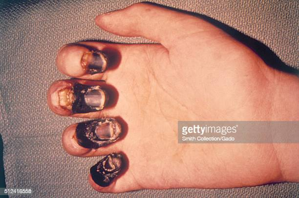 The fingertips of this patient's right hand exhibited the signs of what is known as acral gangrene, after having contracted plague, caused by the...